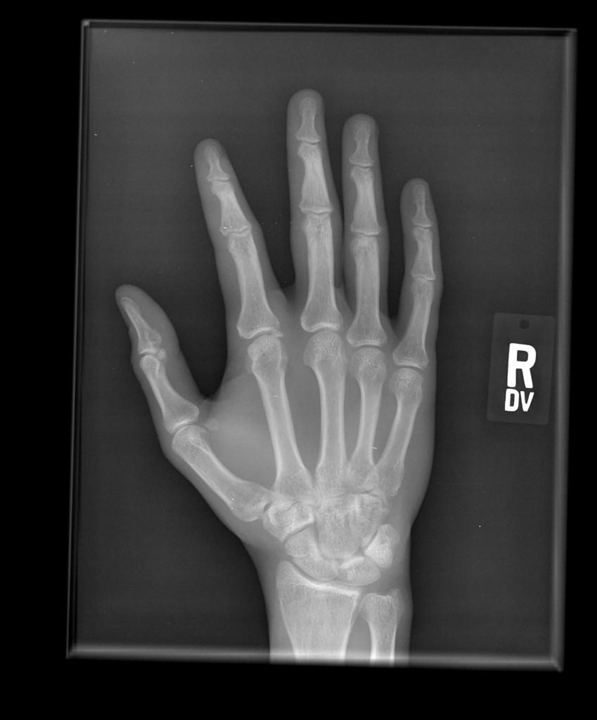 hand_0